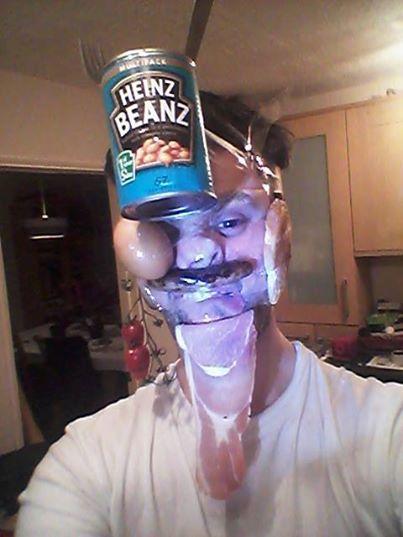 Ďalšie internetové šialenstvo! Ľudia si deformujú tvár lepiacou páskou 4