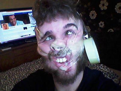 Ďalšie internetové šialenstvo! Ľudia si deformujú tvár lepiacou páskou 6